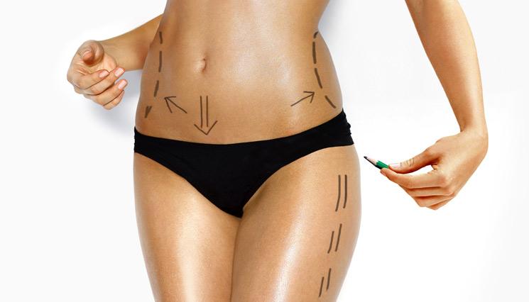 צילום גוף אישה תחתון לפני טיפול בודי טיי