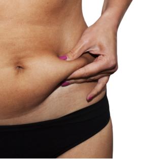 גוף אישה לפני טיפול המסת שומן בגלי רדיו