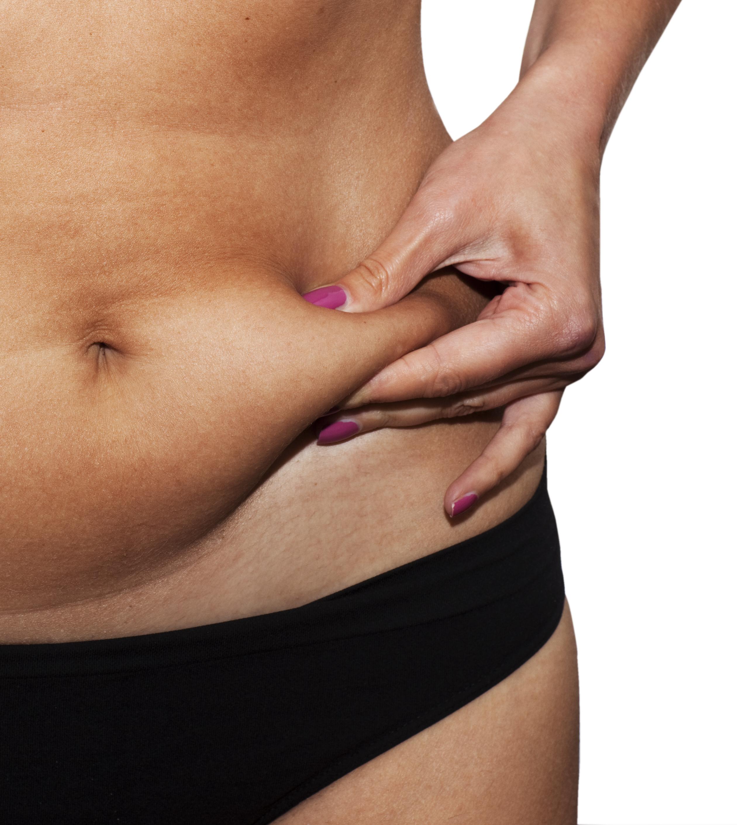 אישה חלק גוף תחתון לפני טיפול בודיטייט