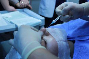 רופא מבצע תהליך הזרקת שומן לפנים