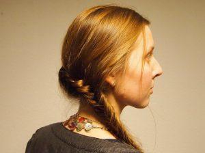 אישה עם צלקת לפני טיפול לייזר